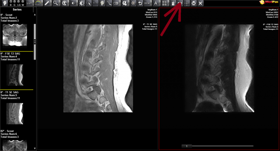 Brighton Radiology xray images