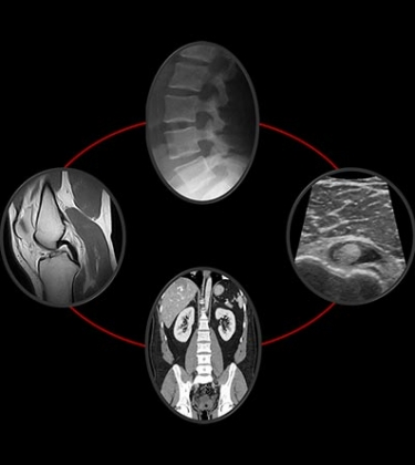 Brighton Radiology provides imaging expertise for spine, sports and activity-related injuries and disorders