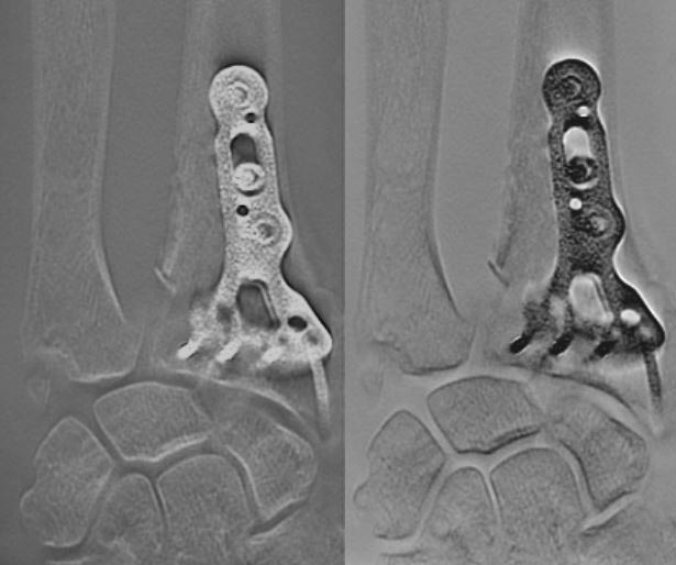Tomosynthesis Evaluation of Fracture Healing with Internal Fixation